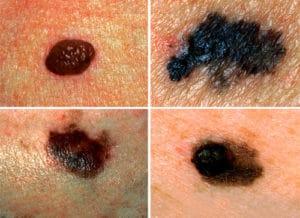 Cancerous Moles